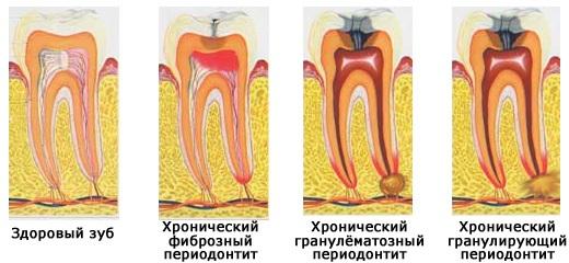 разновидности периодонтита