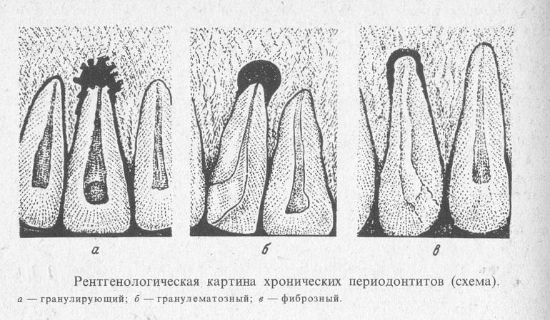 схема хронических периодонтитов